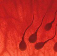 Estrazione spermatozoi via Testicolare / Epididimale -TESA-TESE-PESA-MESA