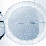 Microiniezione di Spermatozoi – ICSI